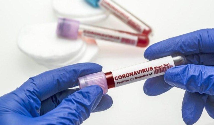 На Ямпільщині виявлено четвертий випадок COVID-19