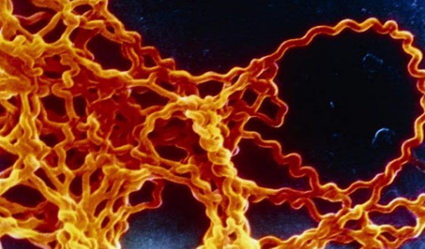 В смт Свеса зафіксовано випадок лептоспірозу